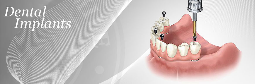 dental implants Port St Lucie